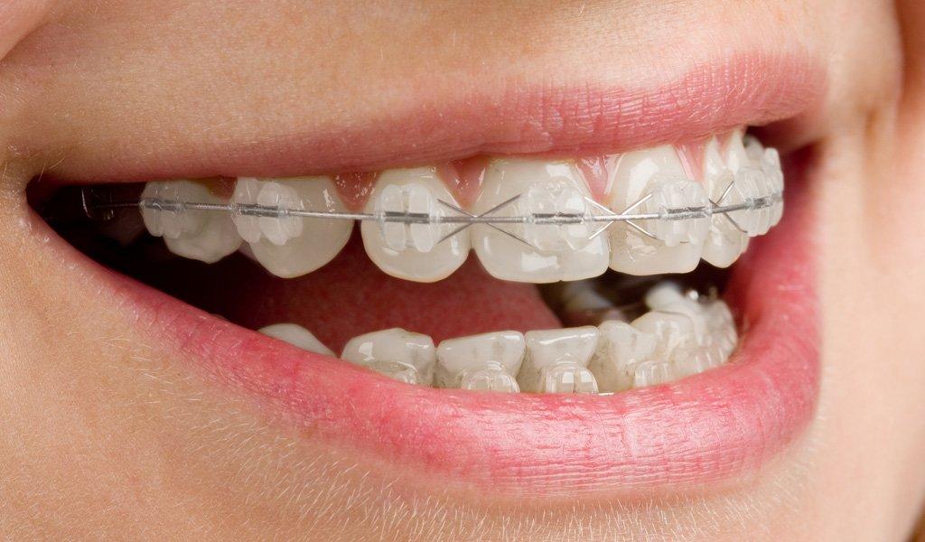 Ortodoncia en Mataró